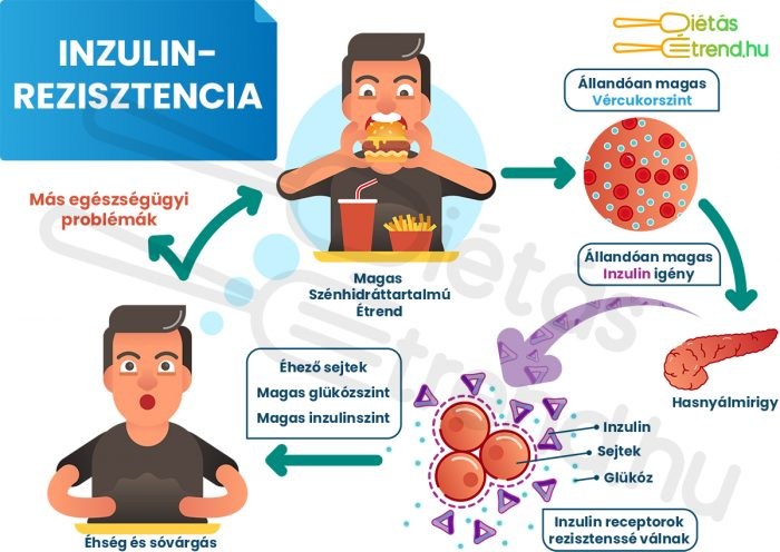 Inzulinrezisztencia infografika